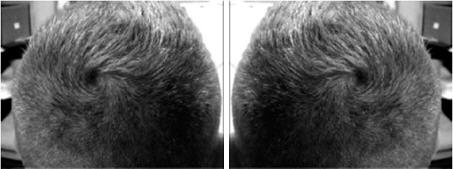 Two hair whorl rotation patterns.